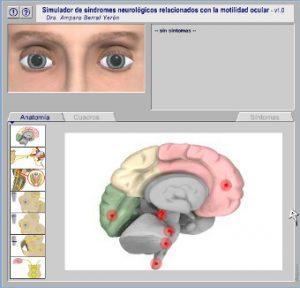 simulador_neuroftalmologia_oftalmologia_cordoba